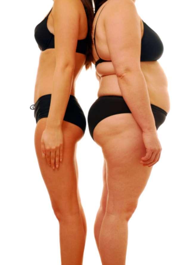 <p>Estudo mostrou que até nove em cada dez pessoas obesas podem ter esta alteração genética</p>
