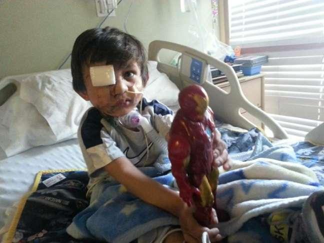 <p>Kevin tem 4 anos e se recupera de&nbsp;ataque sofrido por um pit bull em 20 de fevereiro. Uma campanha no Facebook pede por &quot;miseric&oacute;rdia&quot; &agrave; vida do c&atilde;o que poder&aacute; sofrer uma eutan&aacute;sia. Foto de fevereiro de 2014</p>