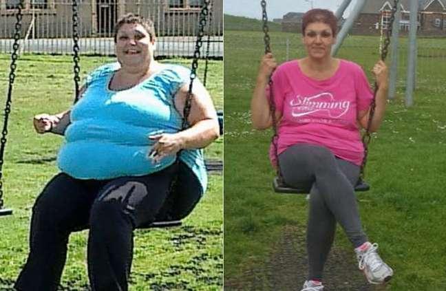 <p>Louise mudou os hábitos e decidiu cuidar da saúde após ficar presa em balanço de parque</p>