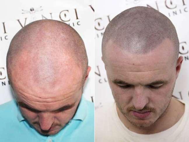 Tatuagem que simula cabeça raspada se torna a salvação dos carecas que perderam a autoestima