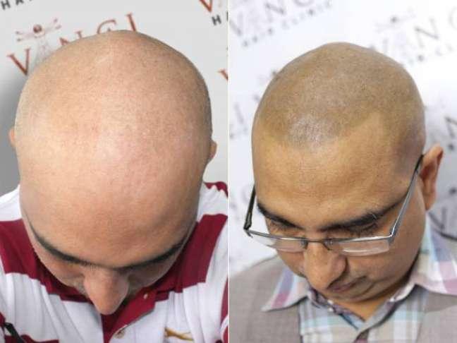 Técnica de micro pigmentação disfarça calvície e cria sensação satisfatória entre os homens ingleses