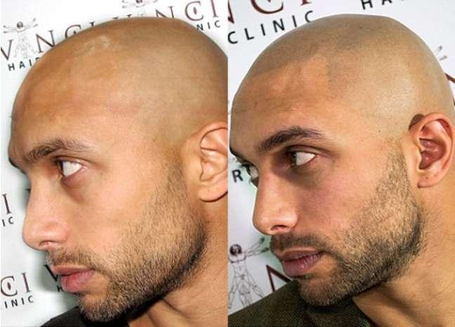 Além de ser indolor, a técnica pode custar até um terço de um implante capilar