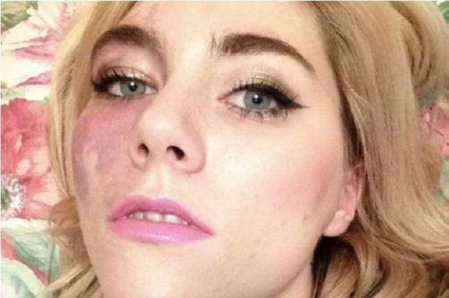 Jovem disse que, na adolescência, escondia mancha com maquiagem