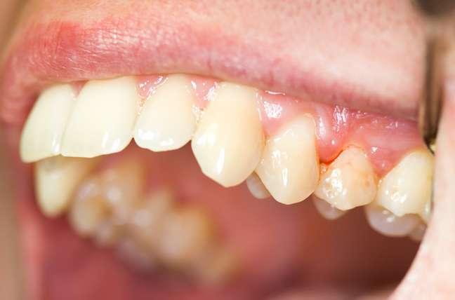 Ao final do estudo foi observado que com o tratamento periodontal houve uma diminuição da inflamação, um aumento significante no fluxo salivar e uma diminuição no índice de atividade da doença de Sjögren