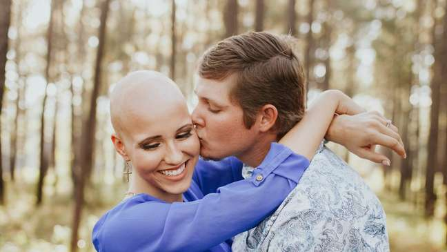 Makenzee Meaux usa peruca desde os oito anos, quando foi diagnosticada com alopecia | Foto: Frost Collective/Facebook