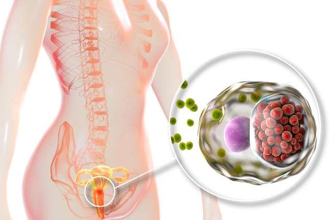 O M. genitalium pode apresentar sintomas parecidos com os da clamídia e é muito perigoso para a fertilidade feminina