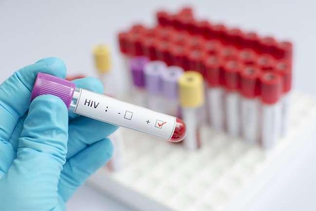 No Brasil, estima-se que 866 mil pessoas vivem com HIV
