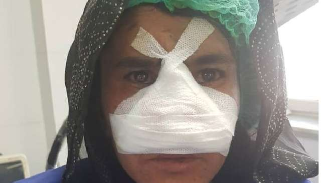Zarka fotografada após a cirurgia, antes de sua bandagem ser removida