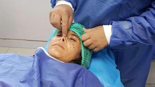 Zarka recebeu anestesia local para a operação