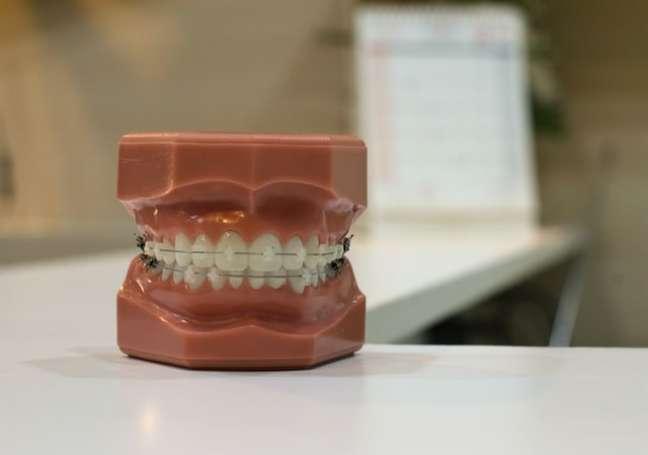 Aparelho dental na infância evita harmonização facial no futuro