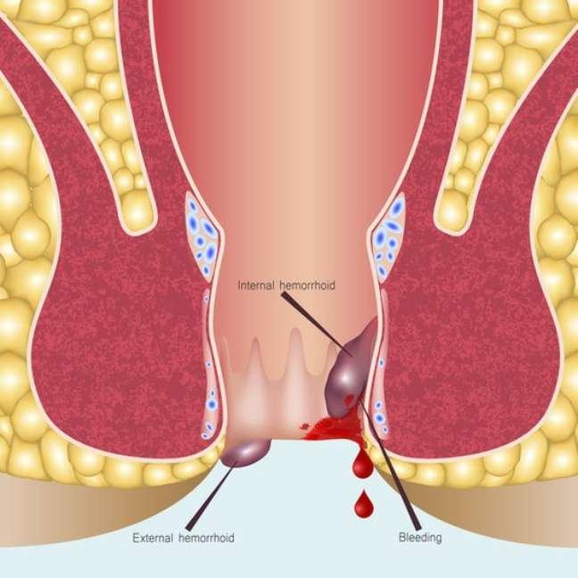 Hemorroidas podem causar ulcerações graves e dolorosas
