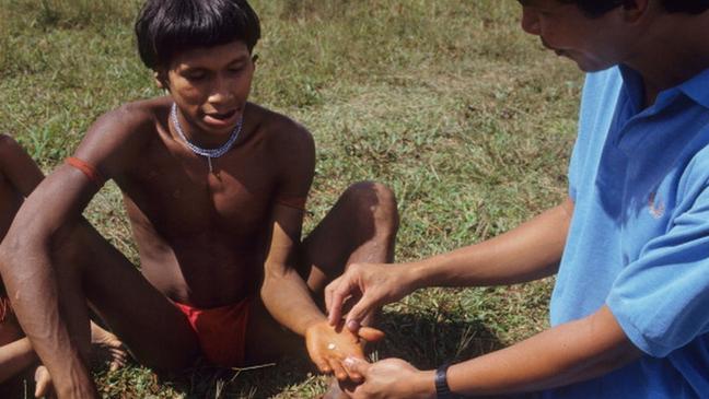Indígena recebe comprimido de ivermectina no maior programa de doação de medicamentos do mundo. A oncocercose já foi eliminada de quatro países latino-americanos e só é encontrada atualmente na divisa entre Brasil e Venezuela
