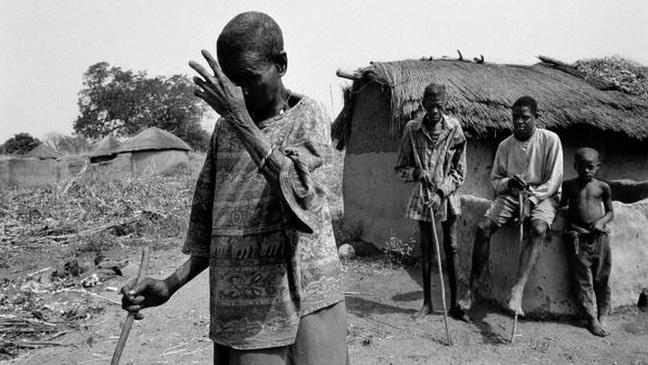 """Essa foto, tirada nos anos 1970, retrata três vítimas da """"cegueira dos rios"""" num povoado da África Central"""