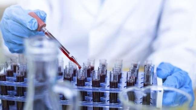 Como o fígado está envolvido no metabolismo dos medicamentos usados em pacientes com covid-19, a função hepática também pode ser afetada após o tratamento