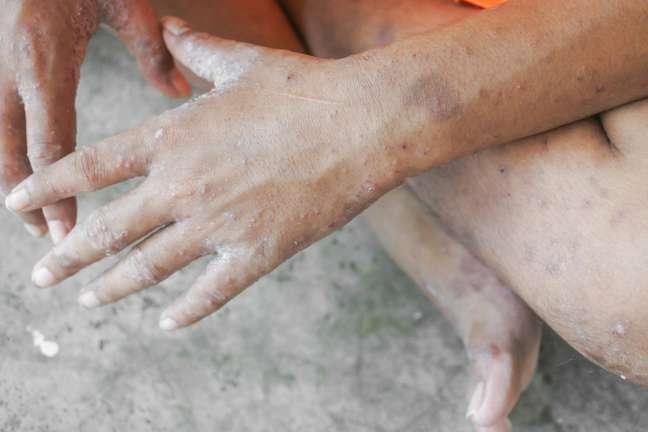 O tratamento pode ser feito com medicamentos e uso de cremes