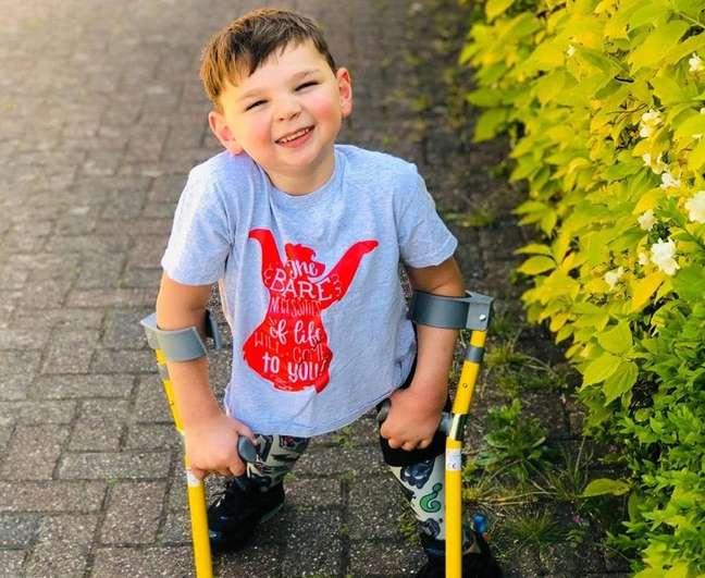 Tony Hudgell tinha apenas 41 dias de vida quando foi hospitalizado com falência múltipla de órgãos e sepse devido a agressões dos pais