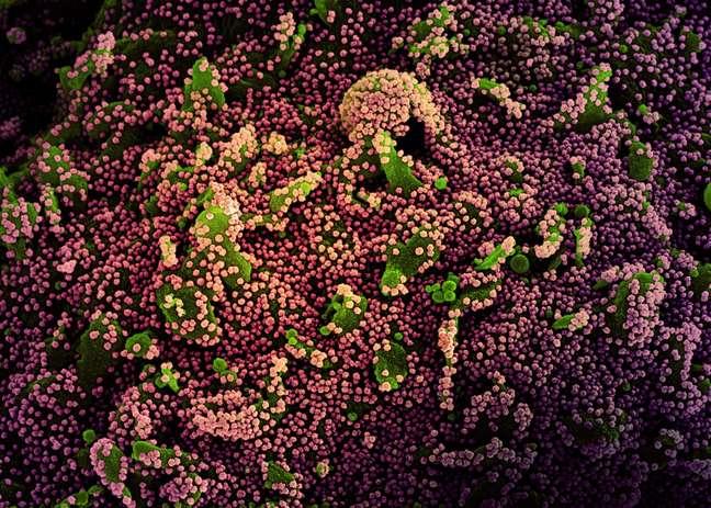 Célula (verde) fortemente infectada com partículas do vírus da covid-19 (roxo)