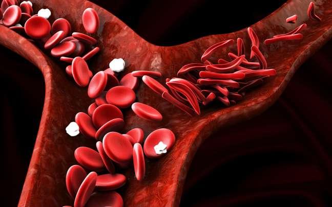Doença falciforme: saiba quais são seus sintomas e o tratamento