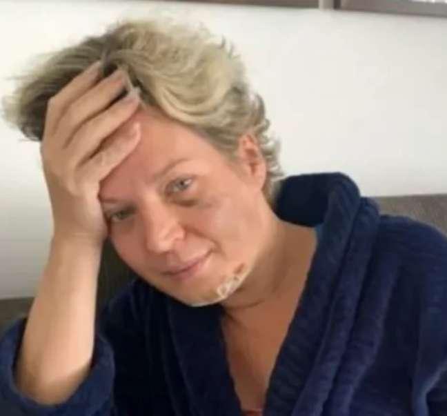 Machucada, Joice Hasselmann diz ter sido vítima de um atentado