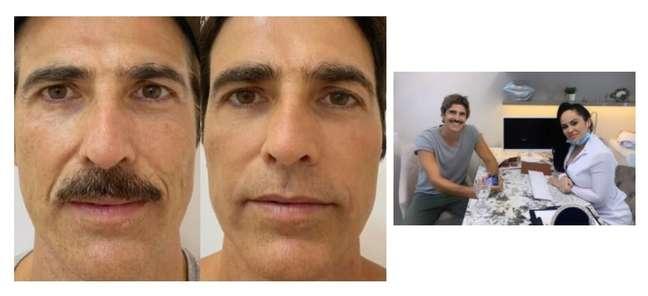 O antes e depois de Gianecchini; ao lado, o ator com dra. Natasha Ramos