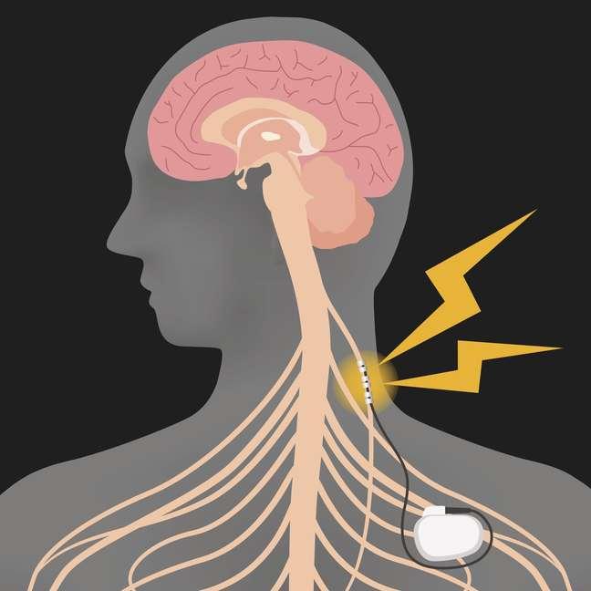 A instalação de marca-passos no nervo vago pode estimular a produção de neurotransmissores no cérebro capazes de regular as emoções