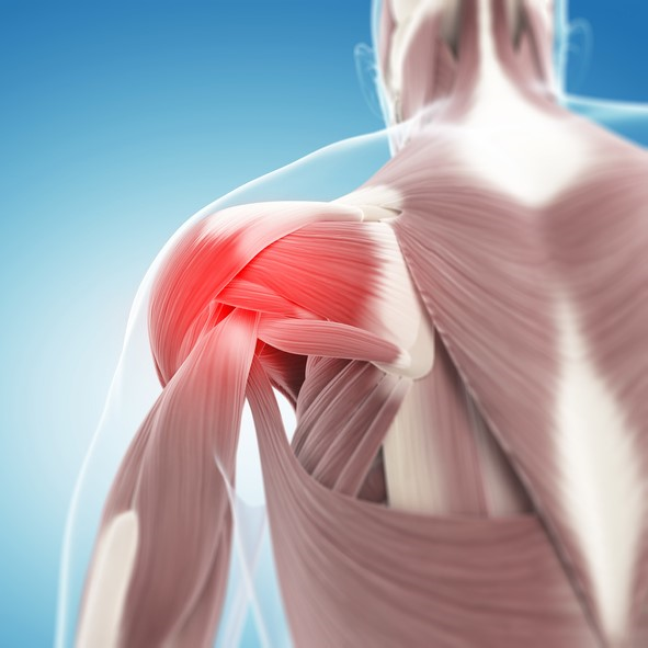 Dor muscular, especialmente na região dos ombros e do pescoço, costuma ser um dos principais sintomas da enfermidade