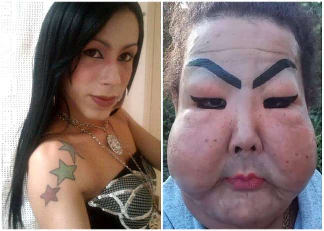 A transexual Juju Oliveira antes e depois da aplicação com finalidade estética que deformou seu rosto