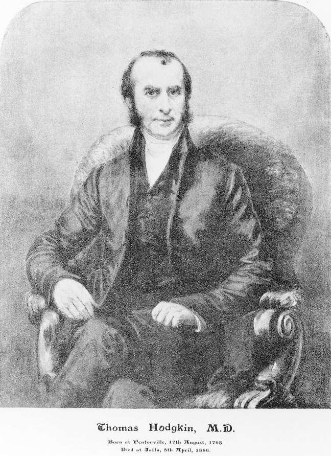 O linfoma de Hodgkin é nomeado em referência ao patologista Thomas Hodgkin