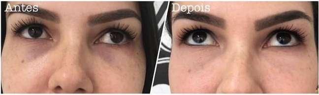 Tatuagem estética reparadora para corrigir olheiras