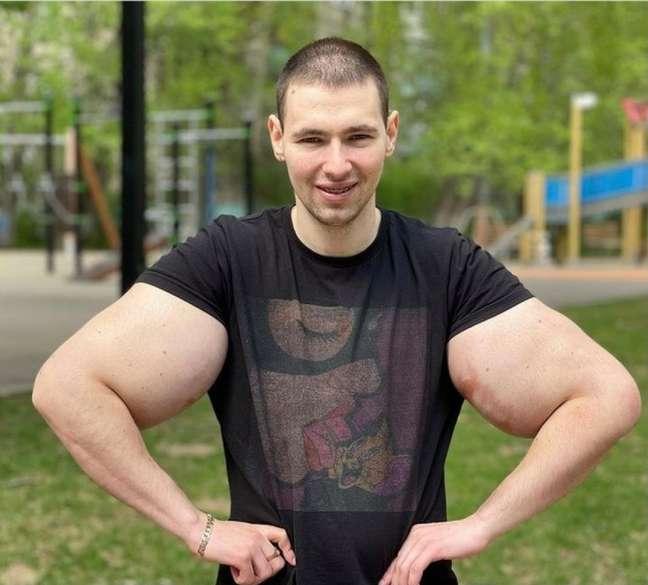 Kirill Tereshin corre risco de morte após seu bíceps romper durante uma luta (Foto: Reprodução/Instagram)