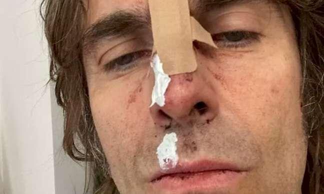 Cantor britânico Liam Gallagher