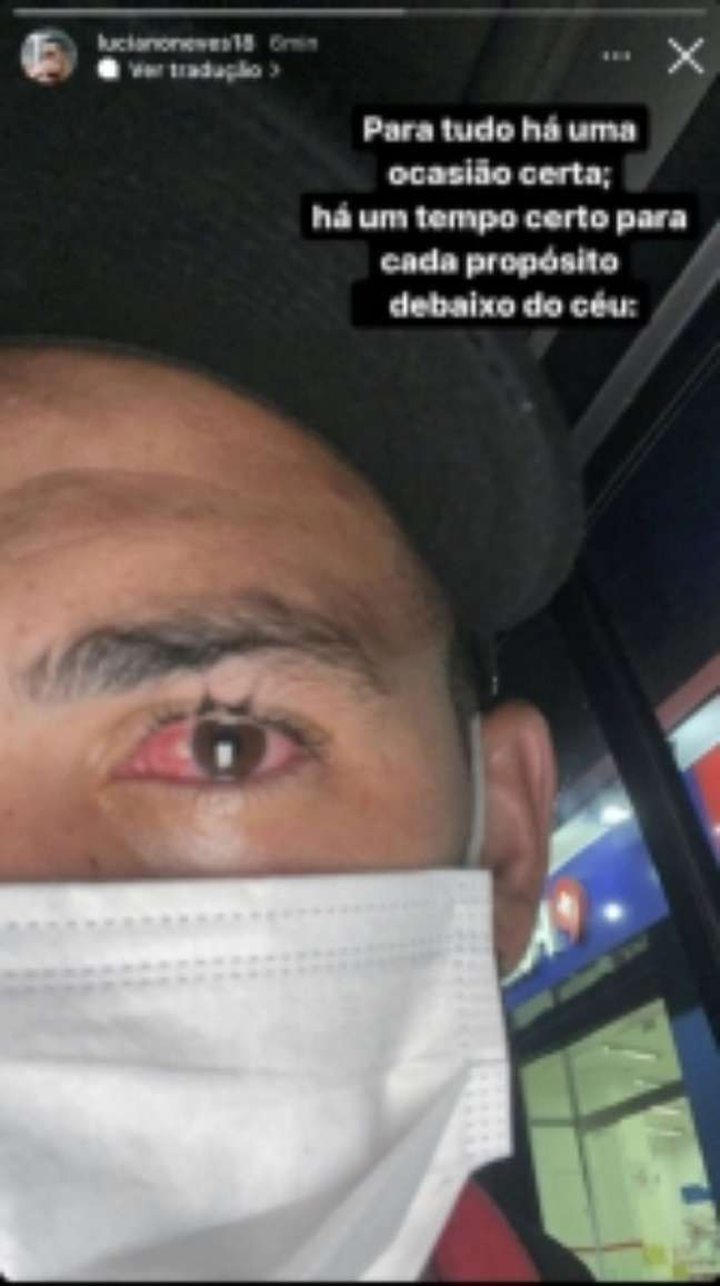 Luciano mostra olho inflamado (Foto: Reprodução/ Instagram)