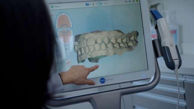 Sensibilidade nos dentes pode ser causa de retração gengival