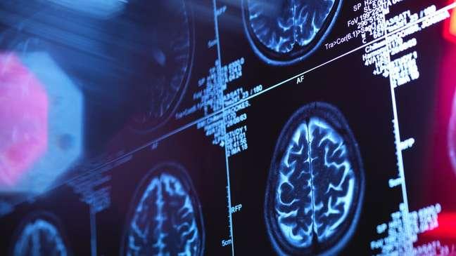 Alterações neurofisiológicas tornam difícil processar operações mentais, incluindo simples conversas