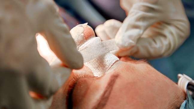 Em 2020, Conselho Federal de Odontologia (CFO) publicou resolução explicitando intervenções no rosto vedadas aos seus profissionais, como a rinoplastia