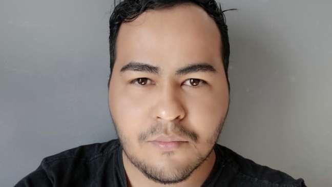 Jhonnattas Santos conta que pretende fazer várias intervenções no rosto e, para isso, 'o método mais acessível hoje é ser paciente modelo'