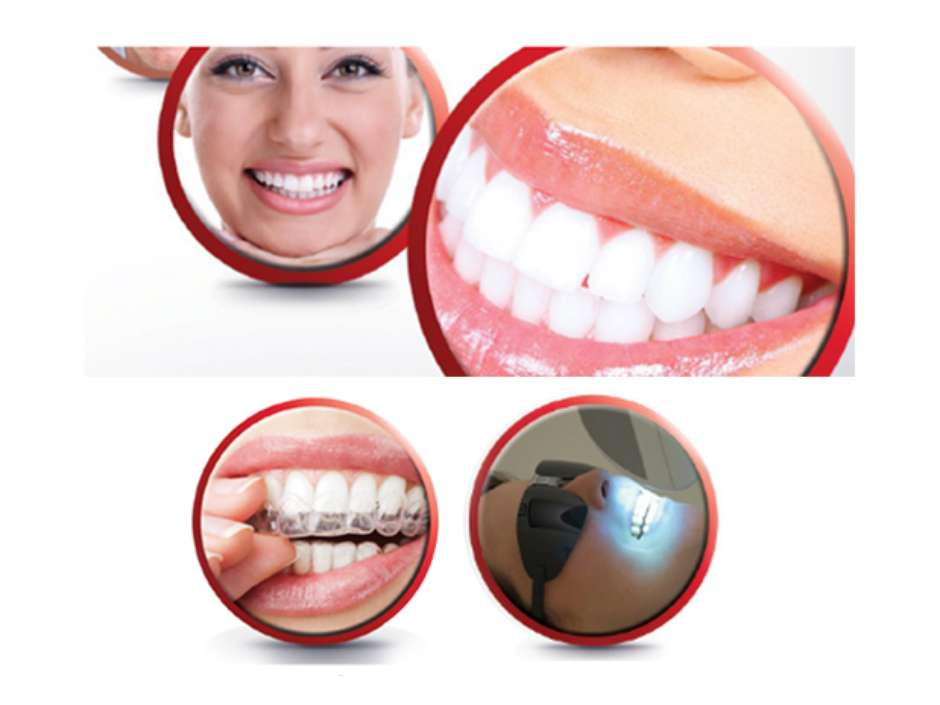 Saiba Se Voce E Candidato Para Clarear Os Dentes