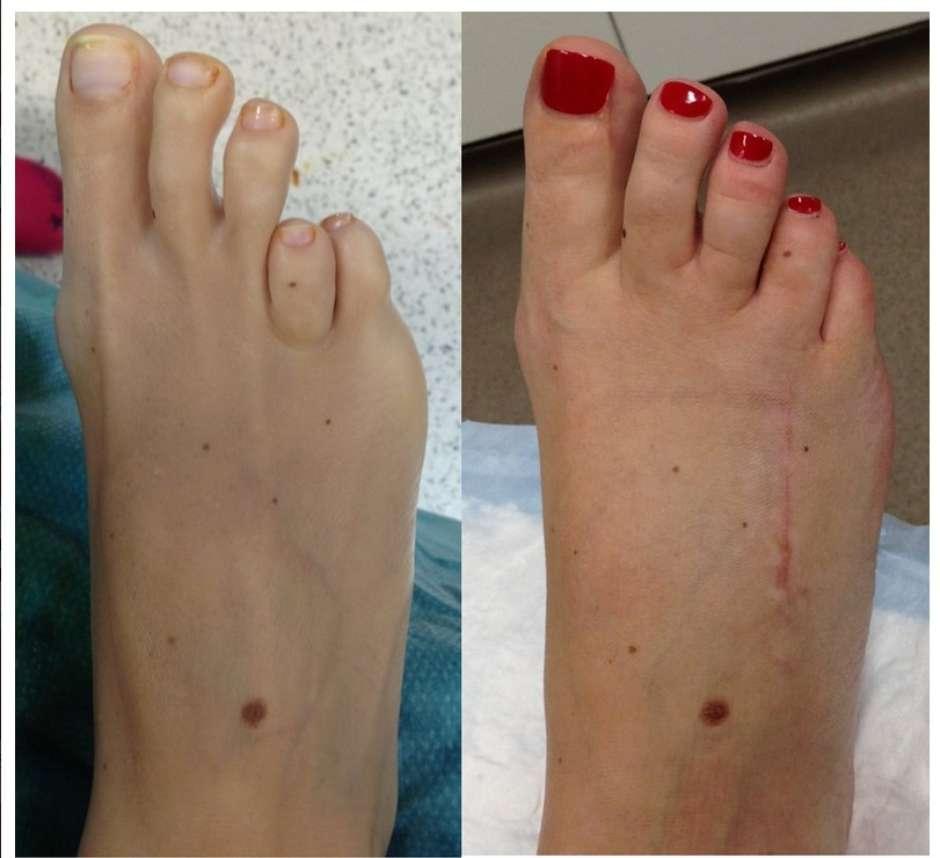pés doloridos de usar saltos