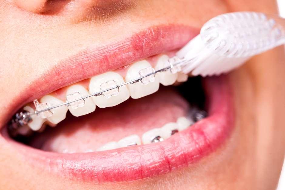 Quer Ficar Menos Tempo Com Aparelho Escove Bem Os Dentes