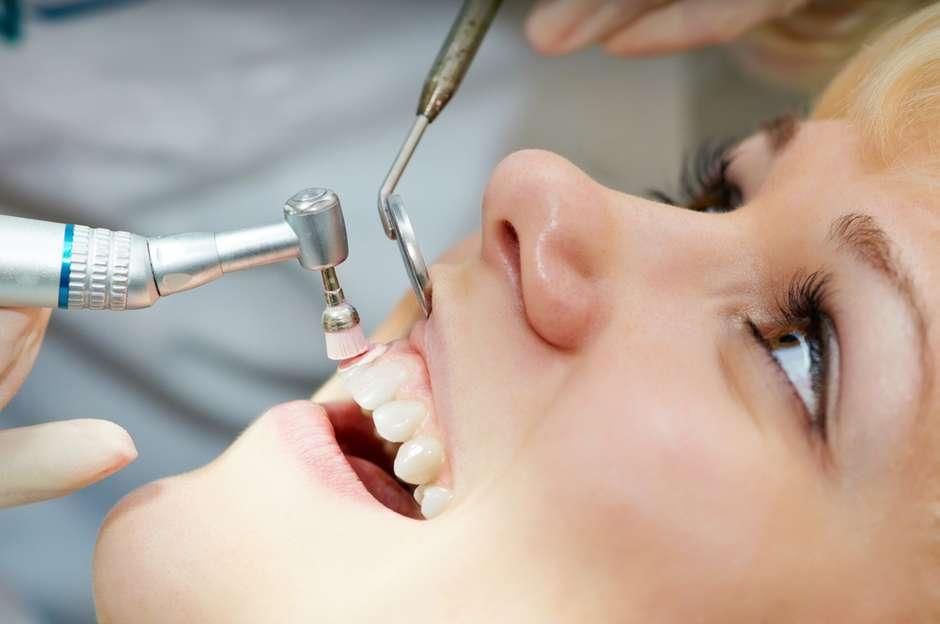 Por Que So O Dentista Consegue Tirar O Tartaro