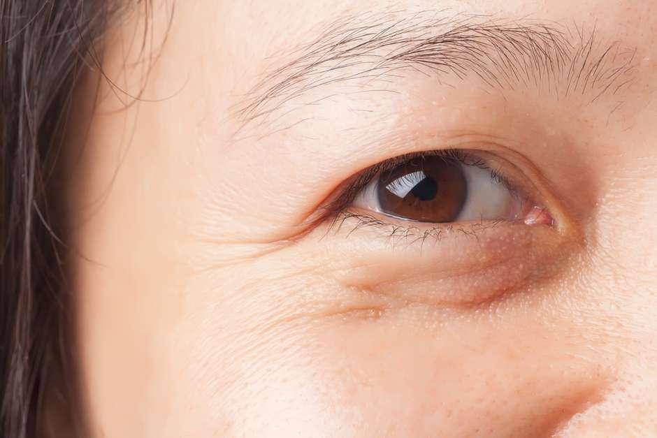 Elimine de vez as bolsas embaixo dos olhos
