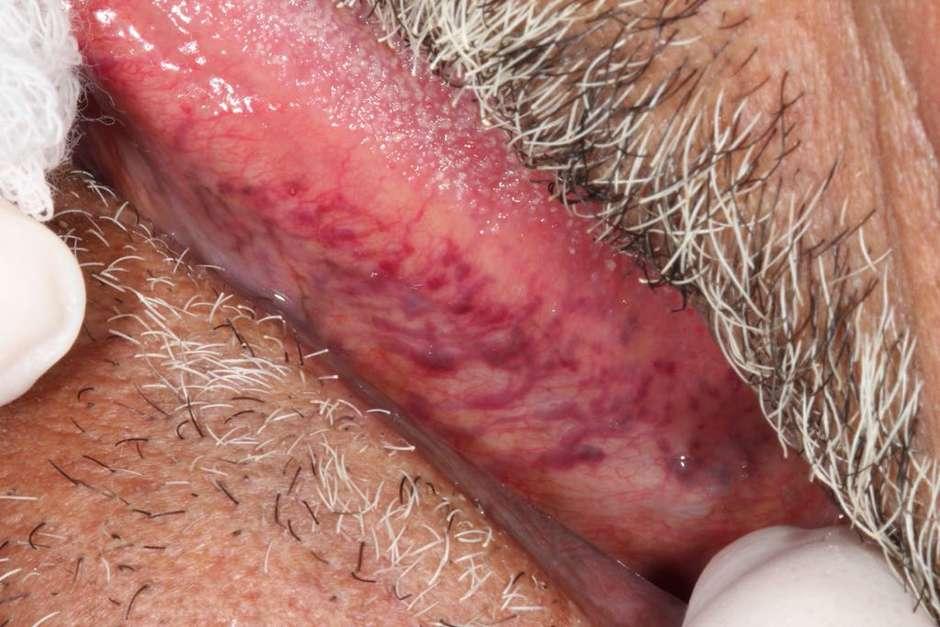 o que são essas pequenas veias roxas nas minhas pernas