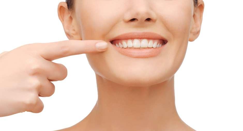 Clarear Ou Facetar Qual Melhor Tratamento Para Seu Sorriso