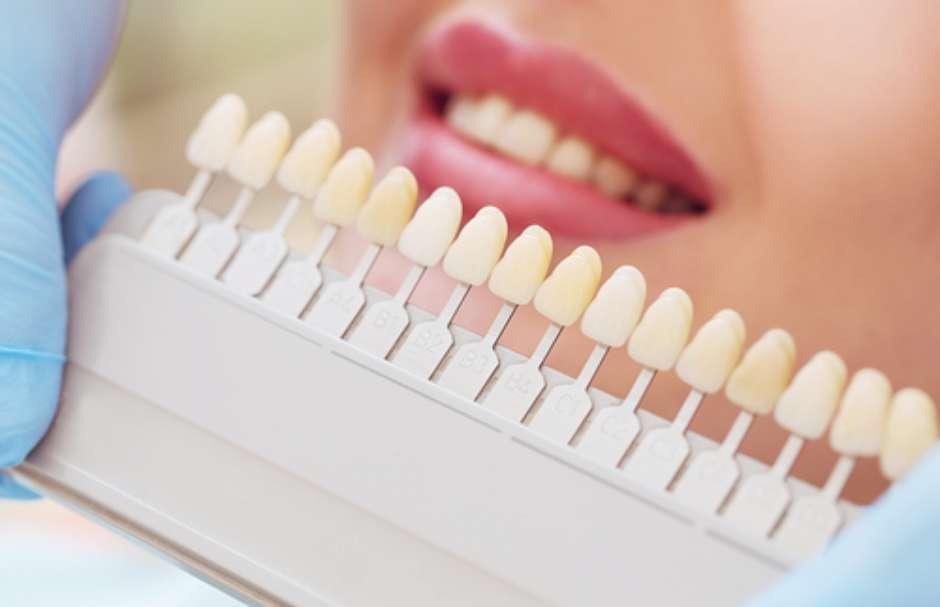 04030335d Facetas de porcelana ou lente de contato dental