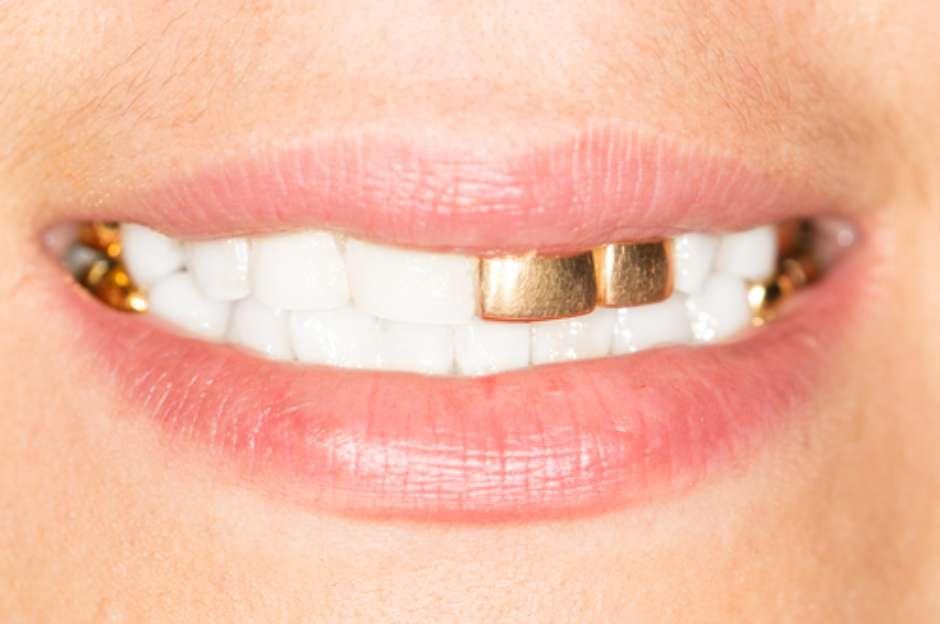 A Polemica Do Dente De Ouro