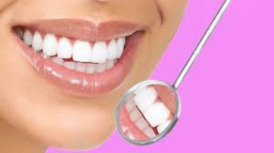 Voce E Um Candidato Para O Clareamento Dental