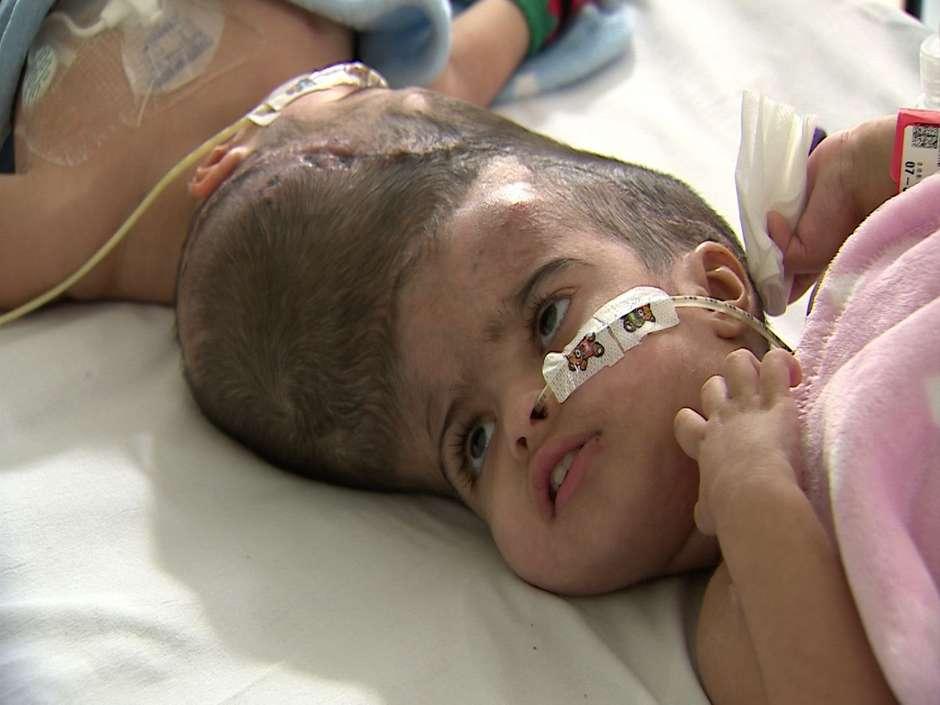 Coágulo de cerebral na cirurgia Índia custo da