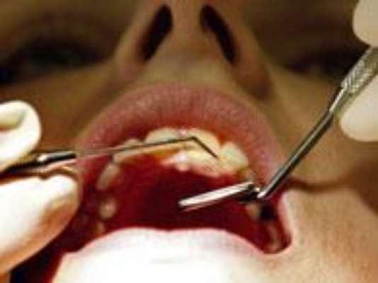 1. Antes de convertirse en un punto negro, la caries se caracteriza por una mancha blanca en la superficie del esmalte de los dientes. En esa fase, el dentista puede detectarla y contener su avance sin comprometer el diente.