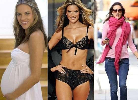 Famosas que bajar de peso antes y despues abdominoplastia