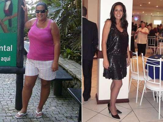 A consultora de seguros Carina Martins Ferreira, de 37 anos, realizou a operação. Depois de investir em todo tipo de dieta e lutar contra o efeito sanfona, seus 117 kg distribuídos em 1,78 m começaram a prejudicar as articulações, aumentar o colesterol e a pressão arterial